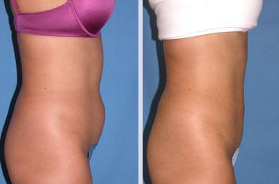 liposuctioninmichigan_procedure